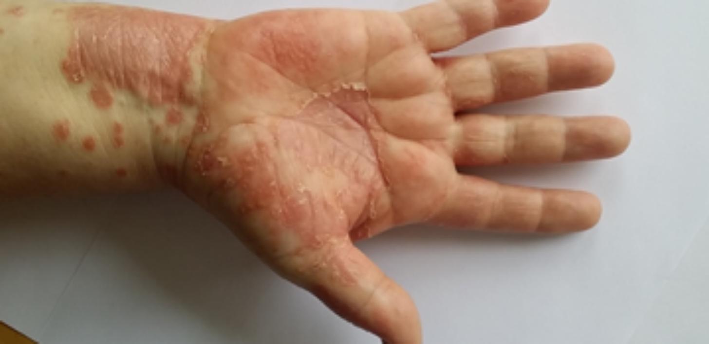 Hudbesvär och hudskador - Arbetsmiljöverket dbcd019f27a29